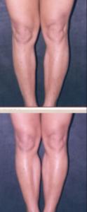protesi polpaccio